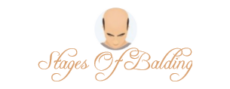 Stages Of Balding Logo