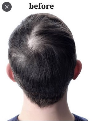 Stages of balding before