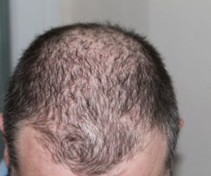 How to Tell if You're Balding