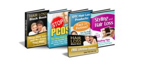 stages of balding hear loss books