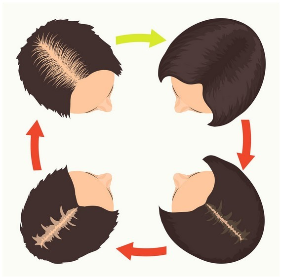 Female Pattern Baldness Pictures