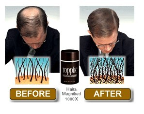 TOPPIK before and after