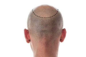 How Much Does Hair Restoration Cost