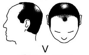 Stage5: Complete hair loss on top of head. Only sides remain