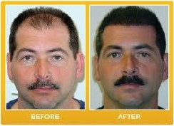 Procerin Reviews before and after