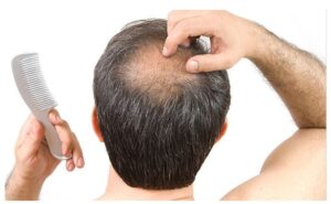 What Causes Balding