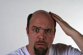 facts of balding