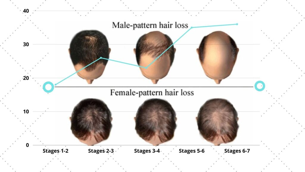stages of balding norwood chart